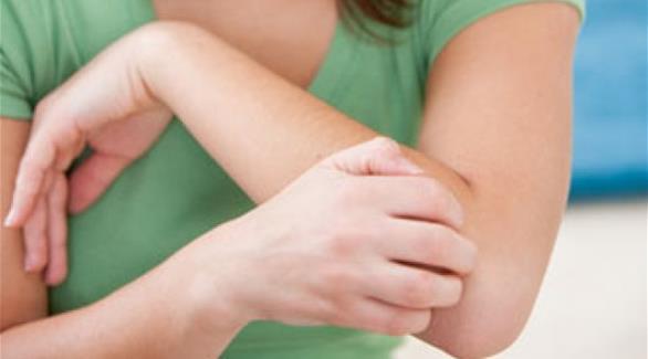 أسباب حكّة الجلد المستمرة وطرق علاجها