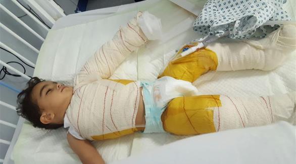 أبوظبي: رفض مكتب الخدم تسفيرها فانتقمت بحرق طفل إماراتي