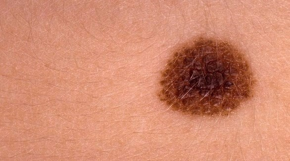 الشامة قد تحكل خطر سرطان الجلد