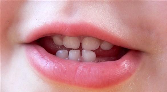 زيادة نسبة الرصاص في أسنان الأطفال المصابين (أرشيفية)