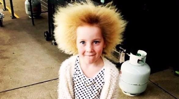 تعاني شيلا من متلازمة الشعر غير القابل للتسريح (أوديتي سنترال)