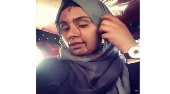 طالبة يمنية تعرض آثار الاعتداء الحوثي عليها في جامعتها (أرشيف)