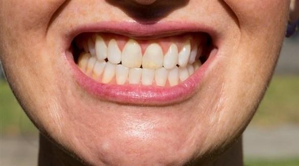 انحسار اللثة من أسباب حساسية الأسنان (أرشيفية)