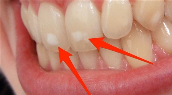 قد تكون البقعة البيضاء إشارة لسوء تنظيف الأسنان (تعبيرية)
