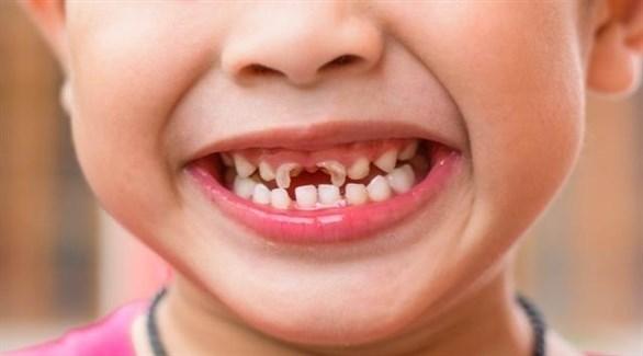 مقدار معجون الأسنان الصحي بحجم حبة البازلاء (أرشيفية)