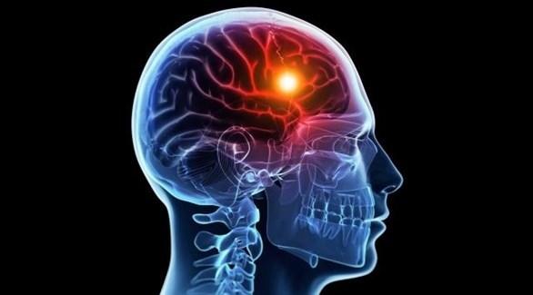 يتطوّر الخرف في الدماغ بعد انتهاء مرحلة التعليم بسنوات (تعبيرية)