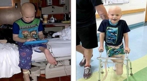 استعاد أوستن ديجنان قدرته على المشي والحركة بفضل جراحة رائدة (ديلي ميل)