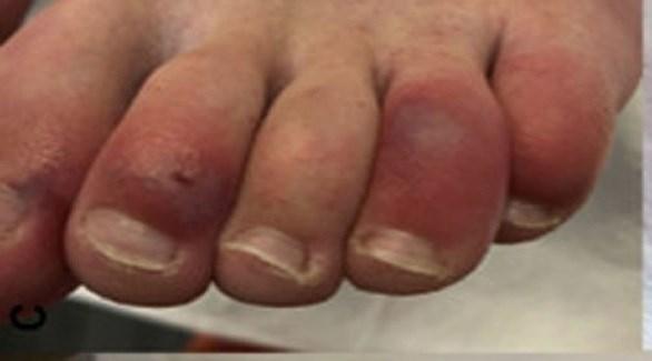 قد يتسبب كورونا بتورم في أصابع القدم وتغير لونها ( ميرور)