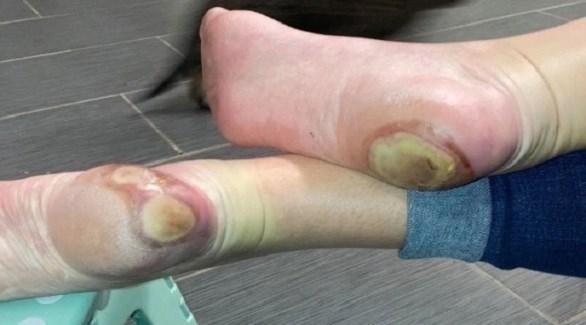 ظهرت قروح غريبة في قدمي باتريشيا تشاندلر (ذا صن)