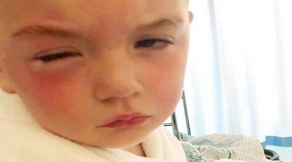 معقم اليدين يدخل في عيني الطفل جاكسون ماكفوي (ميرور)