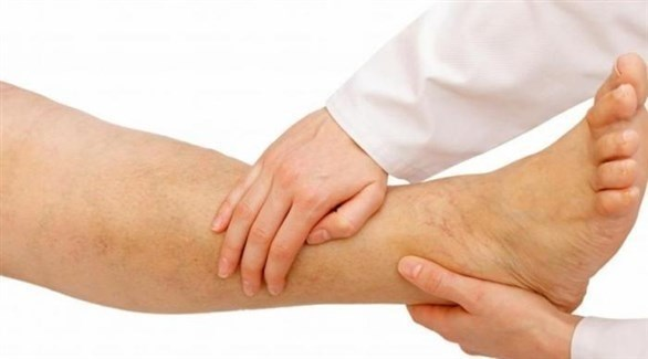 آلام الساق تنذر بهذا المرض 20211012144549118E.j