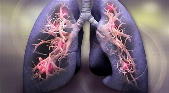 مؤشرات متوقعة الإصابة بسرطان الرئة 2021621142040200OX.j