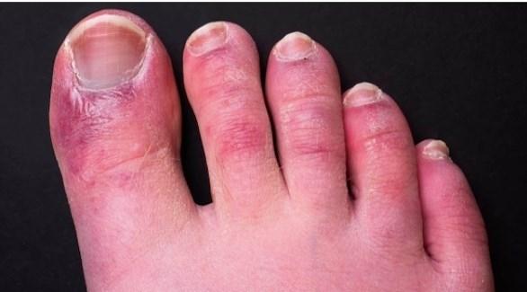 تقرح أصابع القدمين الناجم كورونا 20217271448331589T.j